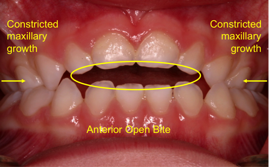 Effects of thumb sucking on teeth and bite