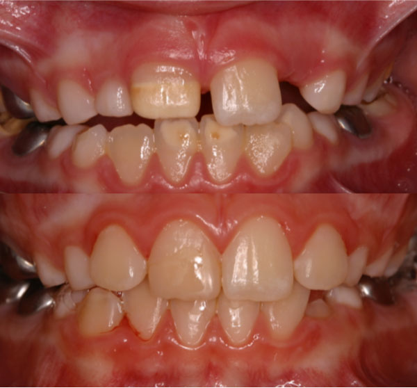 Cosmetic management of affected permanent incisors